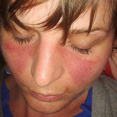 Le lupus aux symptômes caractéristiques