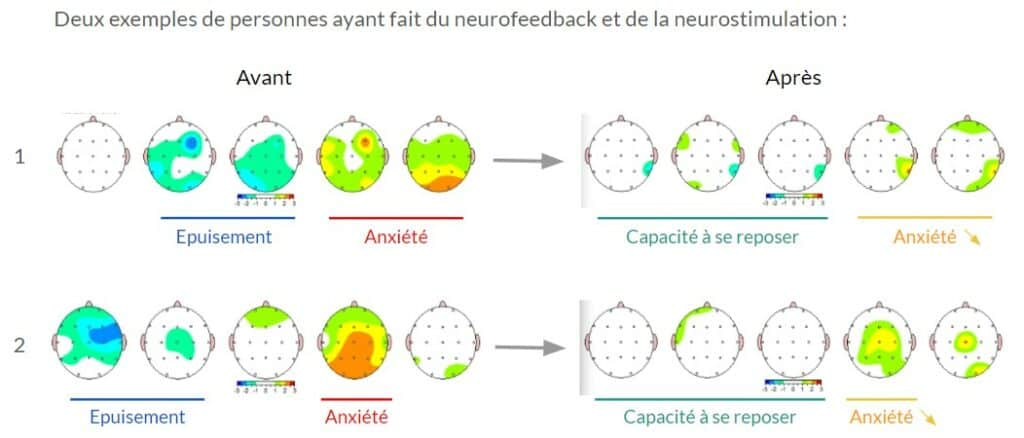 BrainMap